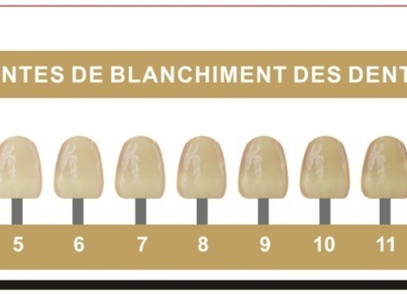 Kit de blanchiment dentaire américaine